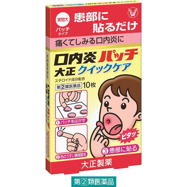 口内炎 薬 貼る なかなか治らない口内炎に効いた!貼るタイプの口内炎パッチがすごい