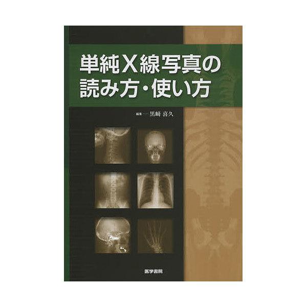 単純X線写真の読み方・使い方/黒崎喜久