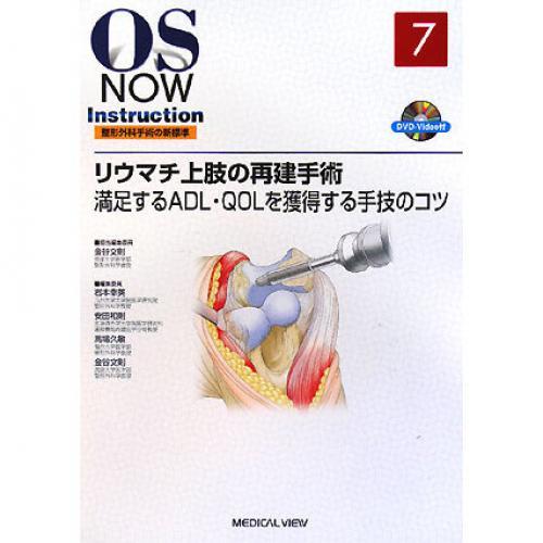 リウマチ上肢の再建手術 満足するADL・QOLを獲得する手技のコツ/金谷文則