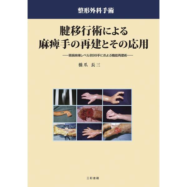 腱移行術による麻痺手の再建とその応用 頸損麻痺レベル別99手におよぶ機能再建術 整形外科手術/橋爪長三