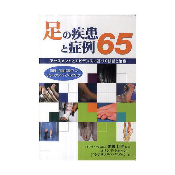 足の疾患と症例65 アセスメントとエビデンスに基づく診断と治療 看護・介護に役立つフットケア・ハンドブック/熊田佳孝/コリン・E.トムソン