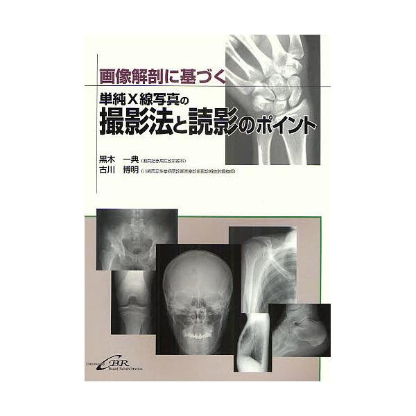 画像解剖に基づく単純X線写真の撮影法と読影のポイント/黒木一典/古川博明