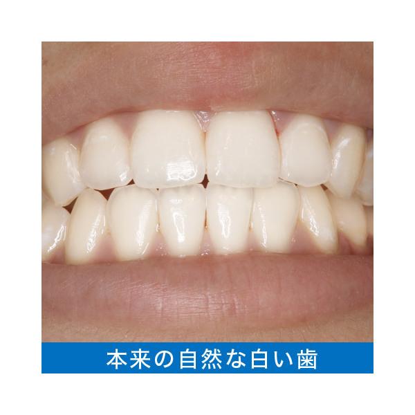 [メール便送料無料]トゥースMDホワイトEX|ホワイトニング 歯磨き粉 歯を白くする タバコ ヤニ取り 口臭ケア ステインクリア 自宅 集中ケア 歯 25mL